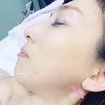 中国美容針