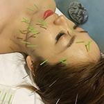 韓国式ウルトラ美容針